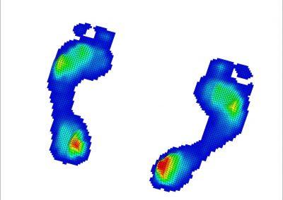 Zoli lábszken 3D